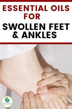 If you are looking for natural swollen feet remedies or treatment, then you will find these essential oils for swollen feet and ankles helpful. You can use these essential oils to get rid of swelling in the legs, feet and ankles. Essential Oil For Swelling, Essential Oils For Inflammation, Essential Oils For Pain, Essential Oils Guide, Essential Oil Blends, Doterra, Herbal Remedies, Health Remedies, Natural Remedies