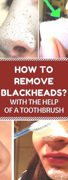 How to Remove Blackheads with the Help of a Toothbrushh.!! Here is..!!