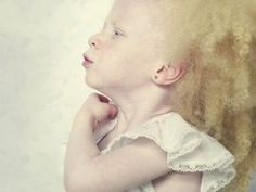 Rare photos of albino people- beautiful and amazing