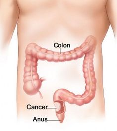 Colon Cancer Prevention #MedicalTips