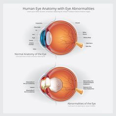 If you are seeing these types of problems in your children then you should need a doctor for better treatment. Eye Anatomy, Types Of Eyes, Eyes Problems, Human Eye, Cool Eyes, Clinic, Children, Young Children, Boys