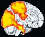 Pictures of the brain's activity during Yoga Nidra / Bindu 11 / Issues of Bindu / Articles