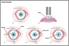 In a corneal transplant, the eye is held open with a speculum (A). A laser is used to make an initial cut in the existing cornea (B). The surgeon uses scissors to remove it (C), and a donor cornea is placed (D). It is stitched with very fine sutures (E). (Illustration by GGS Inc.) It is the most common type of human transplant surgery and has the highest success rate. Eye banks acquire and store eyes from donors to supply the need for transplant corneas.