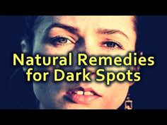 Natural Remedies for Dark Spots and Uneven Skin Tone
