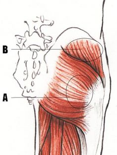 Gluteal points to relieve low back pain
