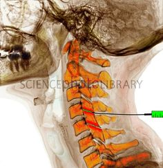 Coloured lateral X-ray of the bones of a human neck undergoing facet joint injection. The needle and syringe are at centre right. The front of the spine is at left. Injection of steroids is one of the possible treatments for arthritis of this joint. Credit: Medical Media Images/Science Photo Library