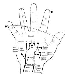 Diagram to show the motor innervation of the hand. Cutaneous innervation is indicated on the fingers. Sensation in the ulnar and median territories may be tested on the fifth and second fingers (at broad arrows), respectively