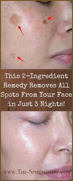 AMAZING: This remedy removes all spots from your face in just 3 nights! AMAZING: This remedy removes all spots from your face in just 3 nights! Health And Beauty Tips, Health Tips, Key Health, Health Guru, Health Benefits, Beauty Care, Beauty Skin, Face Beauty, Beauty Secrets