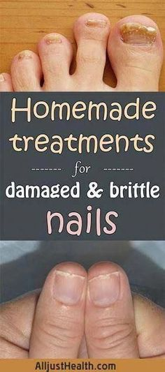 HOMEMADE TREATMENTS FOR DAMAGED AND BRITTLE NAILS #HairFallAndHairLoss #CoconutOilForHairLoss #NaturalShampooForHairLoss #BestFacialHairRemoval