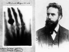 The inventor of X-ray and the first x-ray he took of his wife's hand!!! Sorry I'm an x-ray tech hehehe