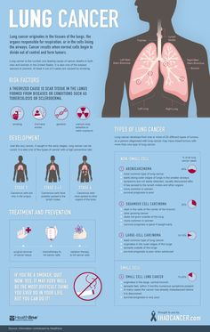 Lung cancer is one of the most deadly disease in the world right now. In this article, we are going to discuss the treatment of lung cancer and stage 4 lung cancer life expectancy without treatment. Lung Cancer Symptoms, Cancer Cure, Lung Cancer Facts, Lung Cancer Awareness Month, Kidney Cancer, Cancer Cells, Daily Health Tips, Health And Fitness Tips, Health Advice