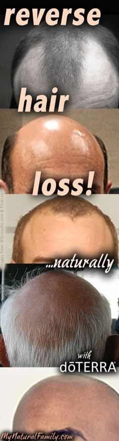 doTERRA Essential Oils for Hair Growth - MyNaturalFamiliy.com #doterra