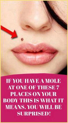 Having a mole, this will help. Health Guru, Gut Health, Health And Wellbeing, Health And Nutrition, Pms, Natural Life, Natural Healing, Natural Living, Holistic Healing