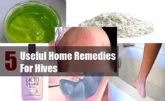 5 Useful Home Remedies For Hives
