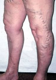 how to avoid getting spider veins