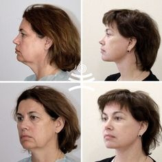 Face Care, Body Care, Skin Care, Beauty Advice, Beauty Hacks, Face Yoga, Spa Massage, Beauty Recipe, Health And Beauty