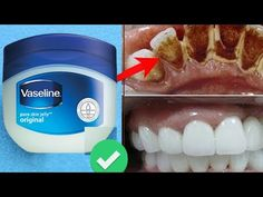 In 5 Minutes - Turn Yellow Teeth to Pearl White, Teeth Whitening at Home. Teeth Health, Healthy Teeth, Teeth Whiting At Home, Vaseline Original, Teeth Bleaching, Stained Teeth, Natural Teeth Whitening, Teeth Care, White Teeth