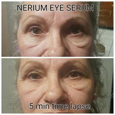 5 Minute results after using Nerium Eye Serum