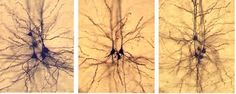 Image result for real neurons in the brain
