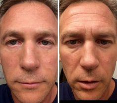 #AGElessCream works for men, too! Who wouldn't like to look awesome for a date?! Be inspired & get results yourself.