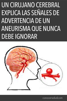 """Aneurisma: """"abultamiento o abombamiento anormal de la pared de un vaso sanguíneo. Un aneurisma puede estallar (romperse) causando hemorragia interna y posible muerte"""". Migraña: """"un dolor punzante o una sensación pulsátil, generalmente en un solo lado de la cabeza."""" Clínica Mayo. LA HISTORIA DE LEE BROADWAY El 1 de"""