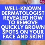 Famous Dermatologist Revealed: Remove Brown Spots On Face And Skin With This Simple Trick! Brown Spots On Face, Dark Spots, Swollen Belly, Sassy Water, Melt Belly Fat, Antibacterial Soap, How To Remove, How To Apply, Unwanted Hair