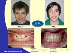 Harrison Orthodontics, Portsmouth, King Charles, Photos, Pictures, Cake Smash Pictures