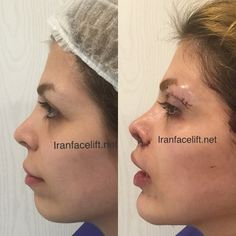#chinimplant #chinimplantation #upperblepharoplasty #blepharoplasty #lipostructuring #centralliplift #liplift #plasticsurgeon #plasticsurgery #farnad #farnadkaramifar #iranfacelift ----------------------------------------- Before and just immediately after chin implantation ; central lip lift and upper blepharoplasty with lipostructuring  قبل و بلافاصله بعد از قرار دادن پروتز چانه ؛ لیفت سانترال لب و عمل زیبایی پلک فوقانی توام با خالی کردن چربی زیر ابروها