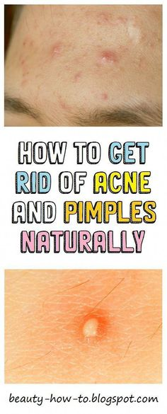How To Get Rid Of Acne And Pimples Naturally - Acne Treatment Pimple Popping, Back Acne Treatment, Acne And Pimples, Acne Scars, Types Of Acne, How To Get Rid Of Pimples, Home Remedies For Acne, Natural Remedies, Acne Breakout