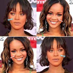 ID Plastic Surgery Hospital ( Korean Surgery, Tear Trough, Wide Nose, Rhinoplasty Before And After, Eyelid Surgery, Video Google, Celebrity Plastic Surgery, After Surgery, Rihanna