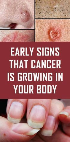 Cancer is a very insidious disease. Even the forms of detection that are considered to be the best like for example tests and routine check-ups are not that reliable. Any strange symptom that you find suspicious and unexplained can help you detect cancer on time. Health And Wellness, Health Fitness, Health Advice, For Your Health, Health And Beauty, Health Lessons, Wellness Spa, Women's Health, Beauty Skin