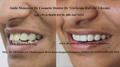 #Smilemakeover of teeth with overlapping,fluorosis and gummy smile with #Dentalveneers by cosmetic dentist Dr Trivikram.. This treatment is not a surgery and your teeth can be straightened without braces/orthodontic treatment and can be finished in just 5-7 days in just 2-3 visits. Read more http://www.allsmilesdc.org/cosmetic-dentistry/ #Fashion  #Smile  #Dentalcrowns
