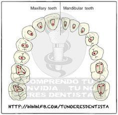 Aperturas dentales para endodoncia..