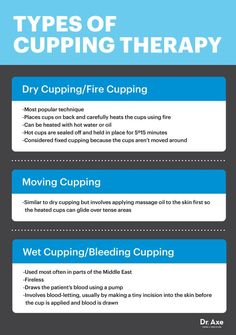 What is cupping? Chinese cupping is an alternative form of therapy. Many benefits of cupping exist, including pain relief and skin rejuvenation. Hijama Cupping, Cupping Therapy, Massage Therapy, Acupuncture, Acupressure Mat, Alternative Therapies, Alternative Medicine, Benefits Of Cupping, Massage Facial