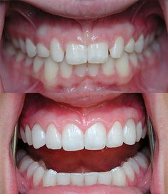 Dental Implants Before and After. http://bcperio.ca/