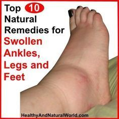 Remedies For Varicose Veins Top 10 Natural Remedies for Swollen Ankles, Legs and Feet - What Causes Water Retention and How to Avoid It Foot Remedies, Health Remedies, Herbal Remedies, Holistic Remedies, Natural Home Remedies, Natural Healing, Natural Oil, Holistic Healing, Water Retention Remedies