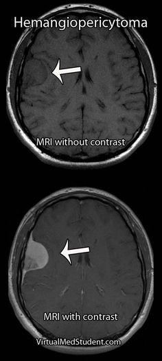 VirtualMedStudent.com    Intracranial Hemangiopericytoma