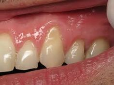 Learn why gums recede and then learn the best natural remedies to help stop this from happening and even reverse the damage that has been done.