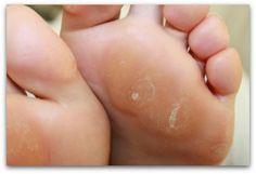 Como eliminar callos de los pies