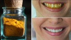 Mit diesem ganz einfachen Trick kannst du deine Zähne auf natürliche Art und Weise aufhellen