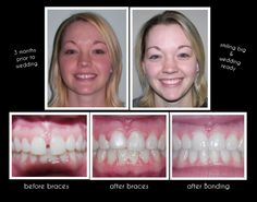 11 Best Great Smiles Images On Pinterest Great Smiles Braces And