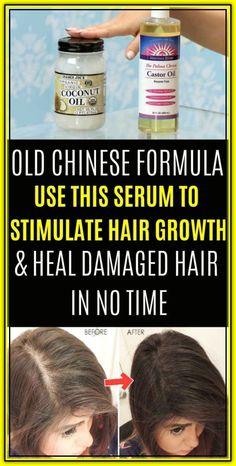 Best Hair Loss Treatment, Hair Growth Treatment, Hair Treatments, Treatment For Damaged Hair, Vitamins For Hair Growth, Healthy Hair Growth, Hair Growth Tips, Natural Hair Growth, Hair Removal