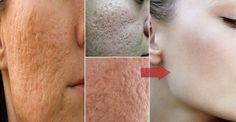 People that have oily skin also have big pores. They hate the pores and need to make them less visible. You can get many items on the market for tight skin and reduce the pores but they are not so … Skin Tightening Mask, Face Home, Scar Removal Cream, How To Remove, How To Apply, Shrink Pores, Minimize Pores, Anti Aging Tips, Facial Cleansing