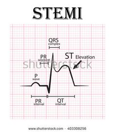 Find Ecg St Elevation Myocardial Infarction Stemi stock images in HD and millions of other royalty-free stock photos, illustrations and vectors in the Shutterstock collection. Nursing Management, Qrs Complex, Ekg Interpretation, P Wave, Myocardial Infarction, Cardiac Nursing, Heart Rhythms