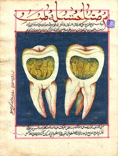 An 18th century hand-illustrated page from an Ottoman Turkish dental book showing a molar infected with tooth worms. As early as Babylonian times and lasting well into the 18th century, it was thought that a toothache was caused by worms. (The theory was disproved by Jacob Christian Schaffer in 1757.) In a cavity on one side of the bisected tooth, Lucifer watches as two worms devour and entrap their victims. In the other half of the tooth, demons lord over a collection of human skulls.