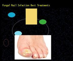 Fungal nail infection best treatments - Nail Fungus Remedy. You have nothing to lose! Visit Site Now