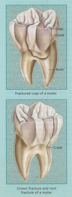 Crown fracture and root fracture of a molar.