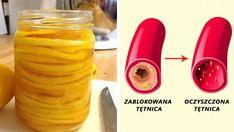 Tradycyjny niemiecki przepis na oczyszczenie tętnic - On naprawdę działa! Herbal Remedies, Natural Remedies, Good Advice, Cholesterol, Detox, Smoothies, Cake Recipes, Herbalism, Water Bottle