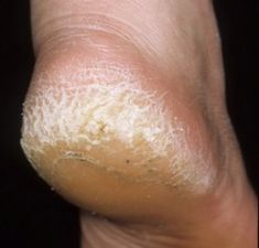 Natural Remedies for a Cracked Heel That Actually Work | Nutriclue
