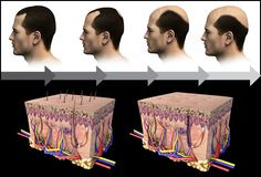 Different medications for Male Pattern Baldness Treatment